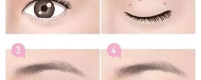 做双眼皮和开眼角一起做效果好吗?